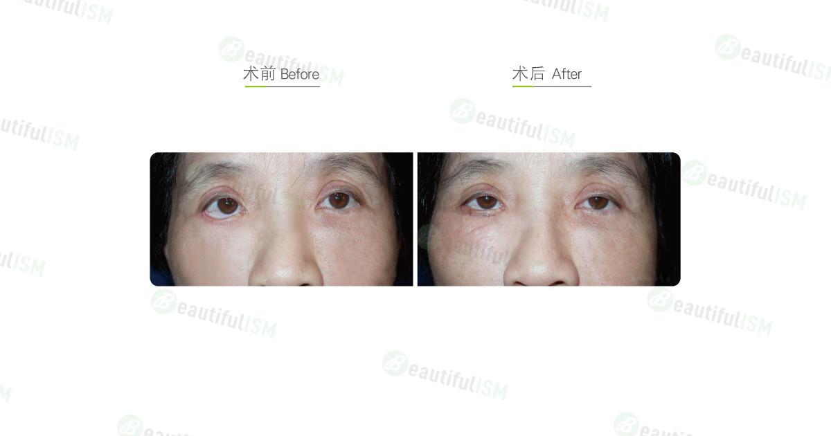 眼睑拉提固定眼角(女)效果图,案例前后对比照片