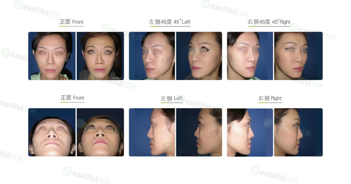 丰苹果肌-假体植入+鼻唇沟填充(女)效果图,案例前后对比照片