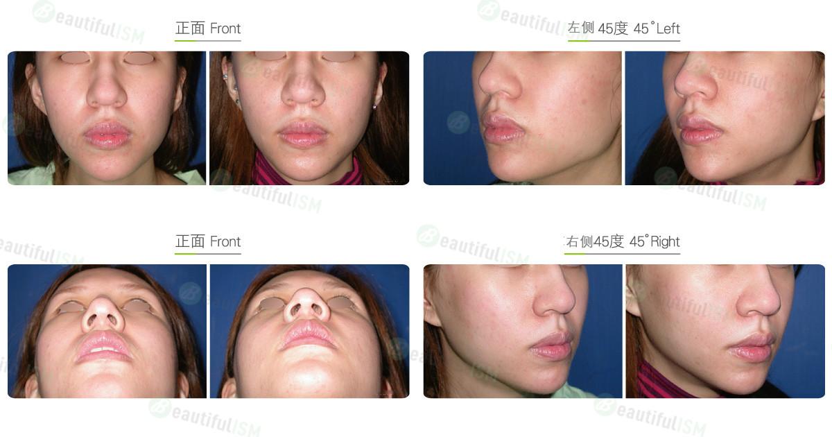 去法令纹-假体填充鼻唇沟(女)效果图,案例前后对比照片