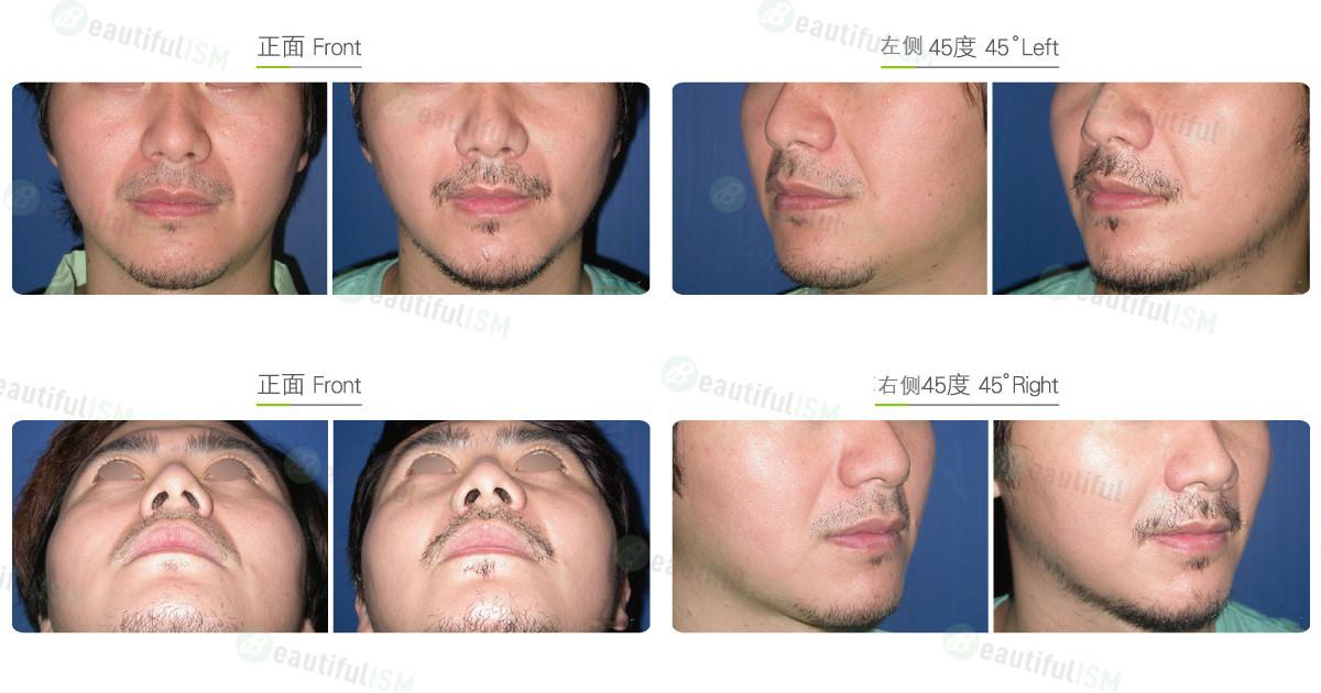 去法令纹-假体填充鼻唇沟(男)效果图,案例前后对比照片