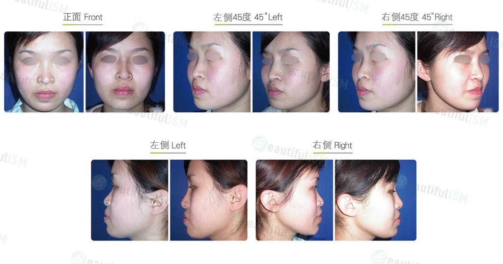 硅胶假体隆鼻(女)效果图,案例前后对比照片
