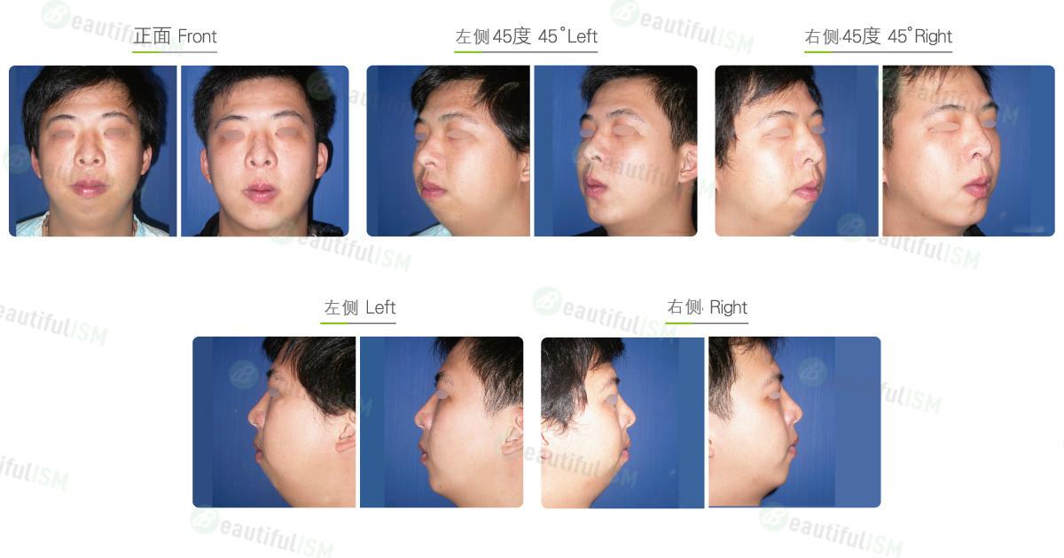 垫下巴+小颌骨重建(男)效果图,案例前后对比照片