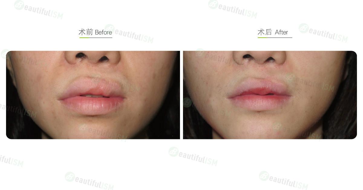 唇腭裂整形(女)效果图,案例前后对比照片