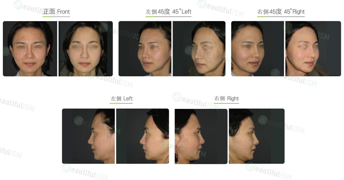 磨眉骨+额头拉皮(女)效果图,案例前后对比照片
