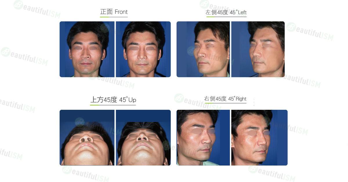 颧骨整形-颧骨体缩减(男)效果图,案例前后对比照片