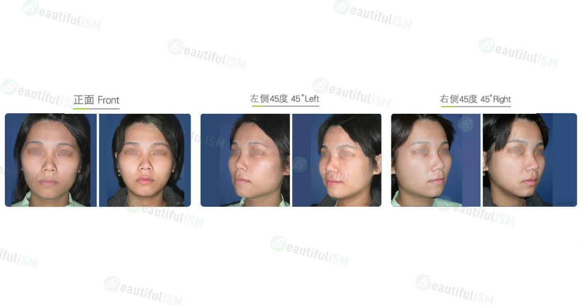 下颌骨整形-下颌骨角削骨(女)效果图,案例前后对比照片