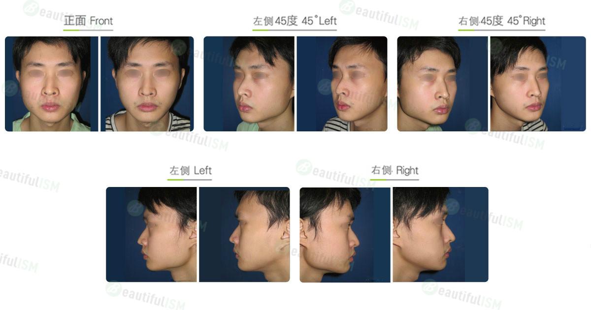 下颌骨整形-下颌骨角合并下颌骨体削骨(男)效果图,案例前后对比照片