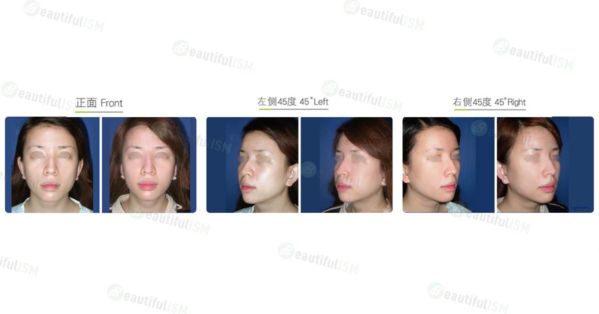 下颌骨整形-下颌骨磨骨(女)效果图,案例前后对比照片