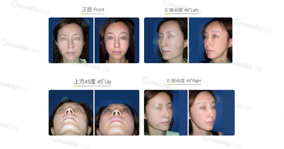 国字脸整形+中脸紧致拉皮(女)效果图,案例前后对比照片