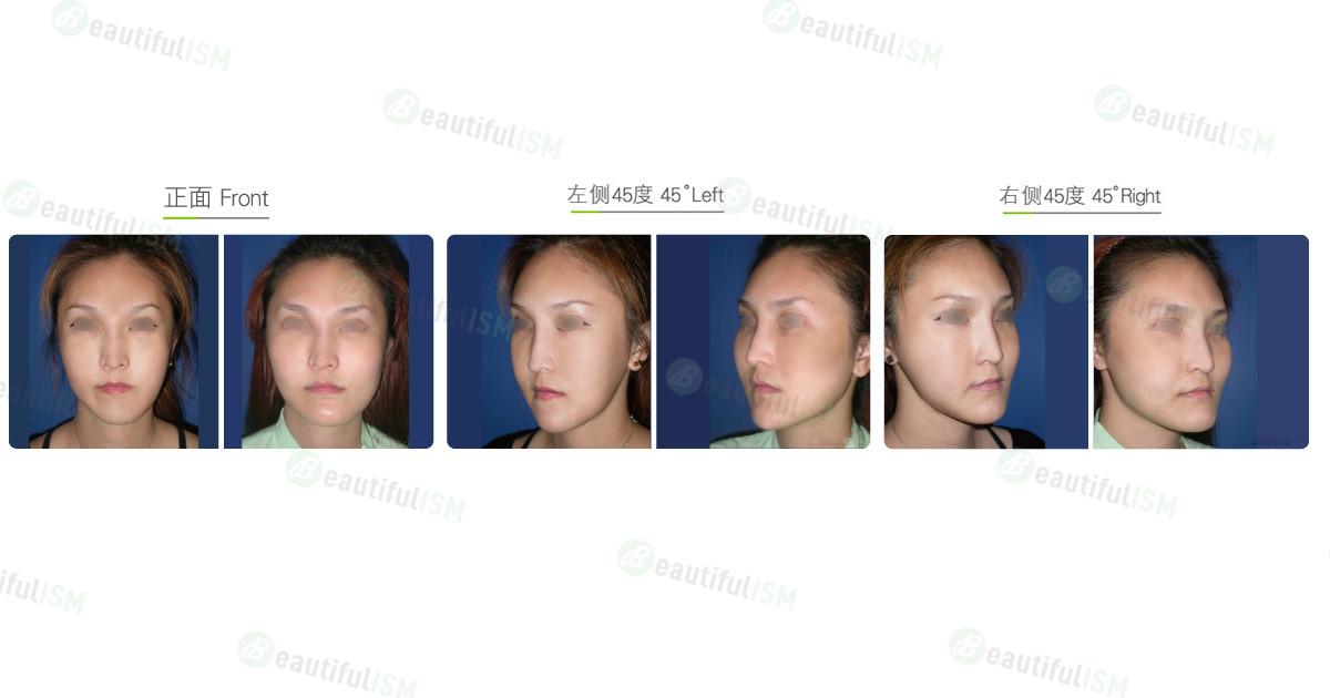 不对称脸整形(女)效果图,案例前后对比照片