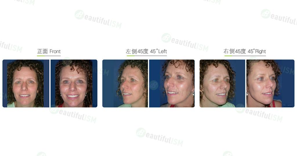 提眉(女)效果图,案例前后对比照片