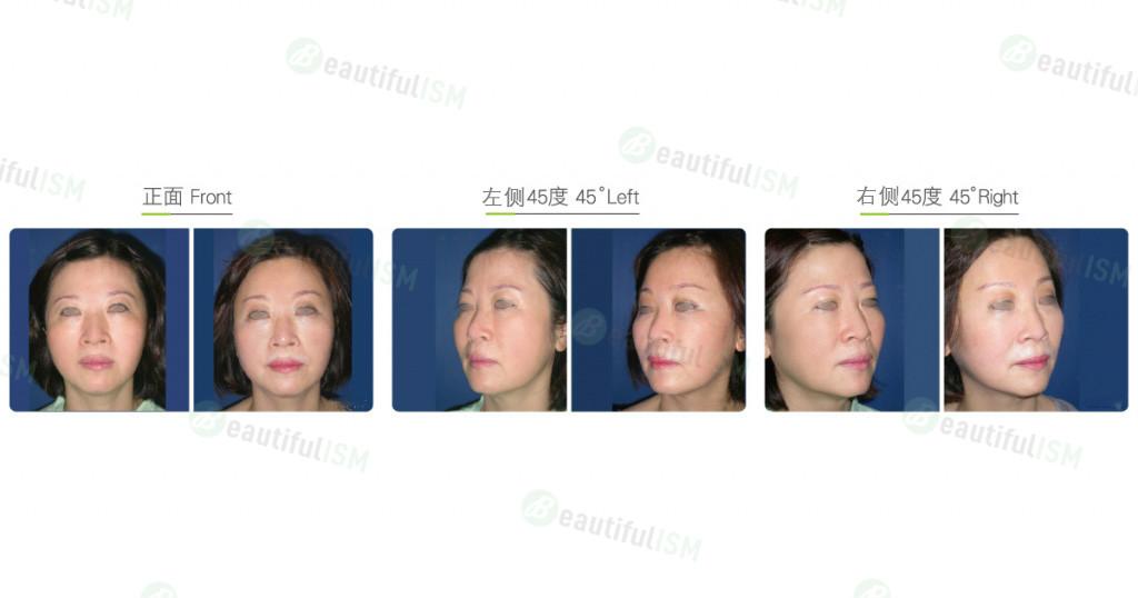 内窥镜额头提拉+中脸颞额提升(女)效果图,案例前后对比照片