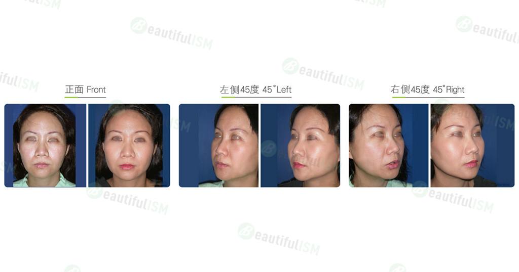 内窥镜中脸提升(女)效果图,案例前后对比照片