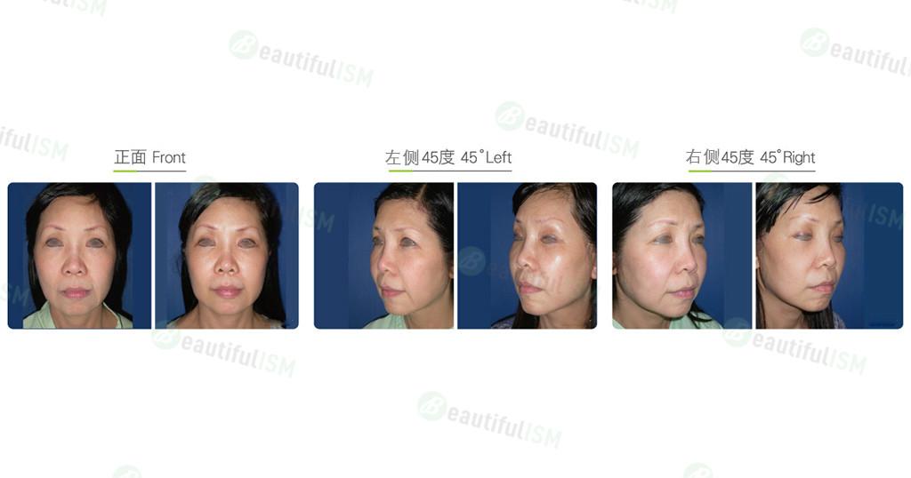 颞额中脸筋膜提升+下巴线提升(女)效果图,案例前后对比照片