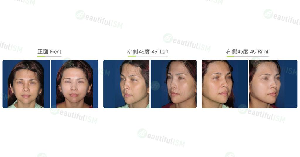 颞额中脸筋膜提升+口内脂肪垫取出(女)效果图,案例前后对比照片