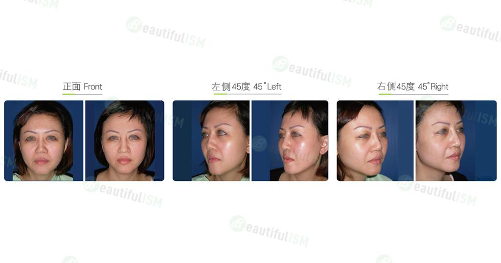 中脸八爪钩提升(女)效果图,案例前后对比照片