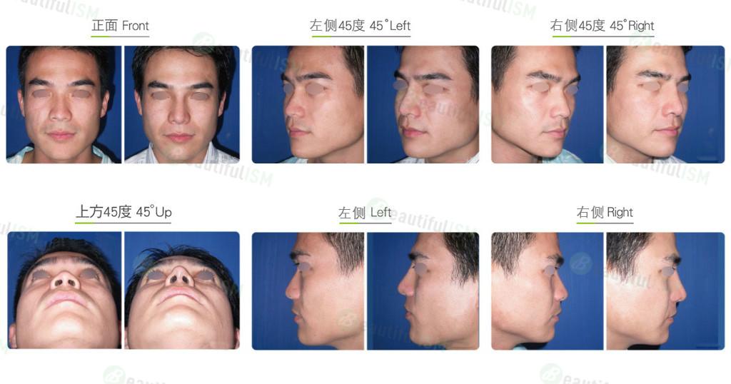 韩式隆鼻(男)效果图,案例前后对比照片