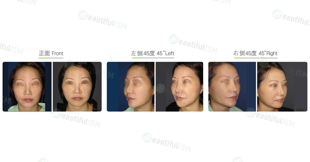 下脸部提拉-下脸八爪钩提升(女)效果图,案例前后对比照片