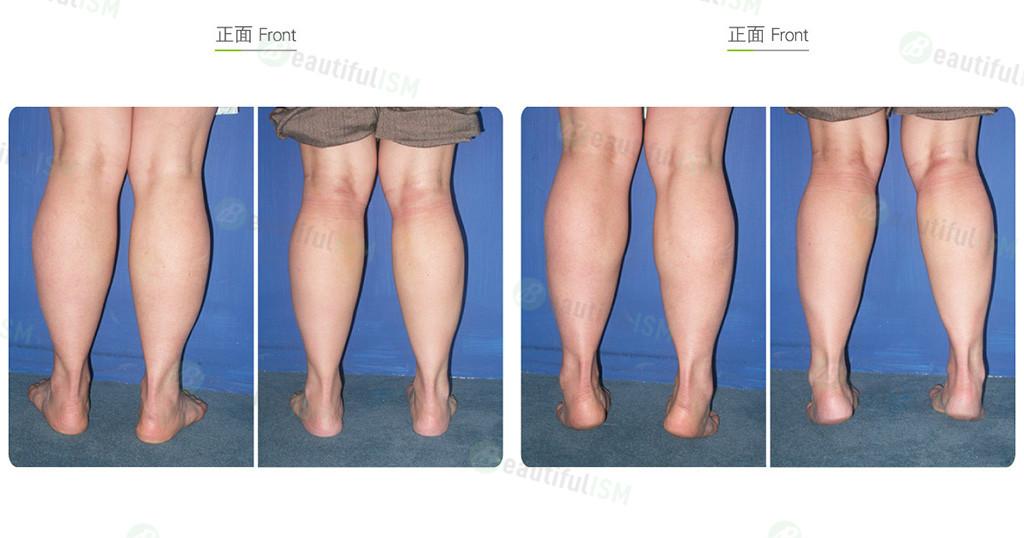 瘦小腿-选择性神经阻断效果图,案例前后对比照片