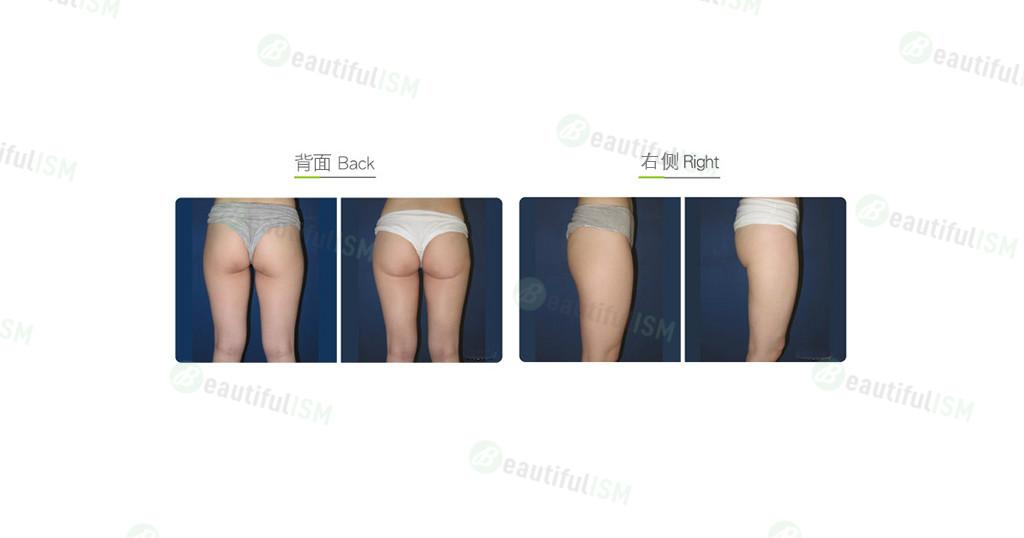 臀部吸脂(女)效果图,案例前后对比照片