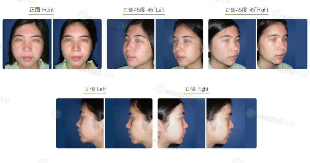 自体脂肪移植-额头/太阳穴脂肪填充(女)效果图,案例前后对比照片