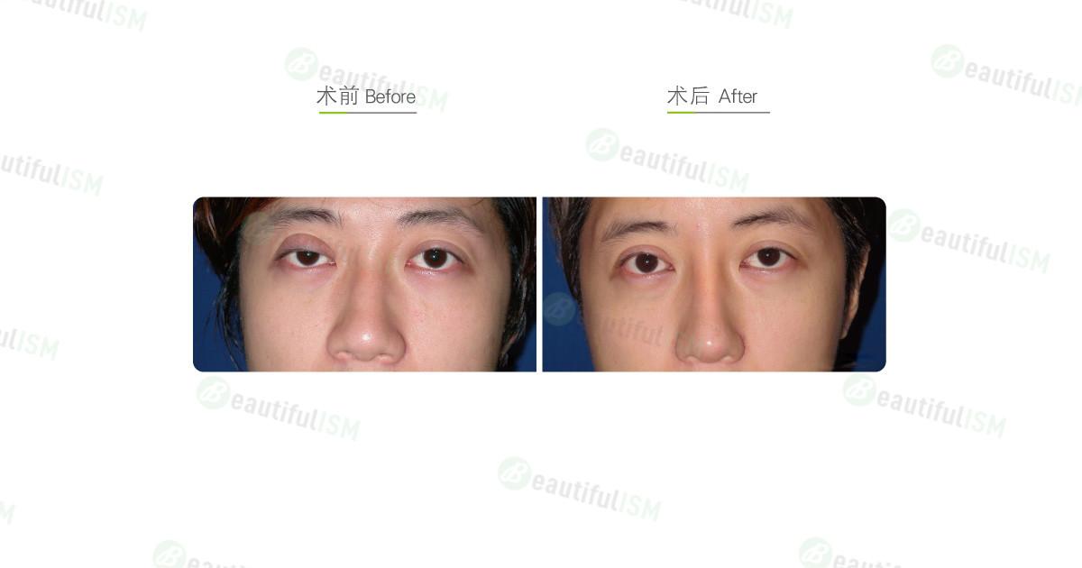 提眼肌矫正(男)效果图,案例前后对比照片