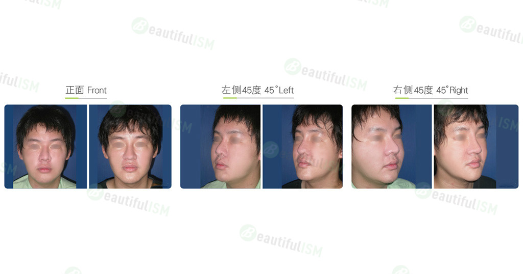 口内脂肪垫取出(男)效果图,案例前后对比照片