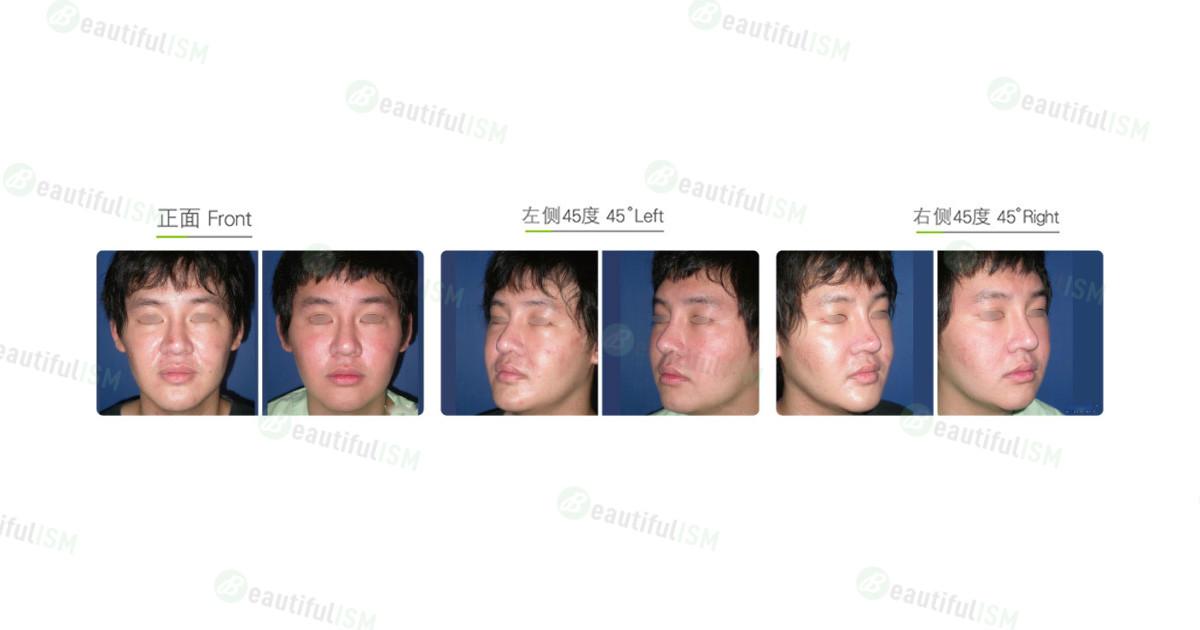 疤痕修复-磨皮(男)效果图,案例前后对比照片