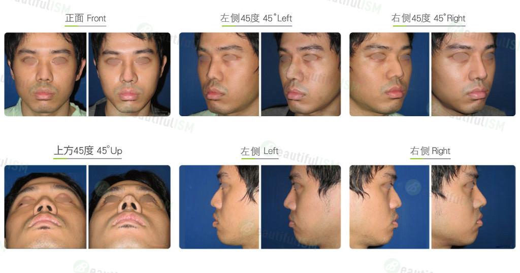 韩式隆鼻+鼻骨缩减(男)效果图,案例前后对比照片