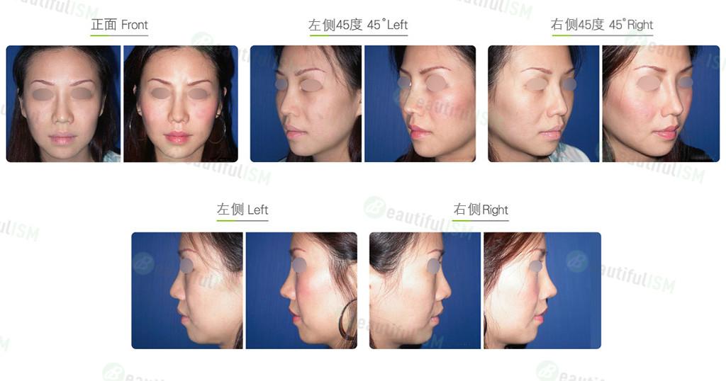 韩式隆鼻修复(女)效果图,案例前后对比照片