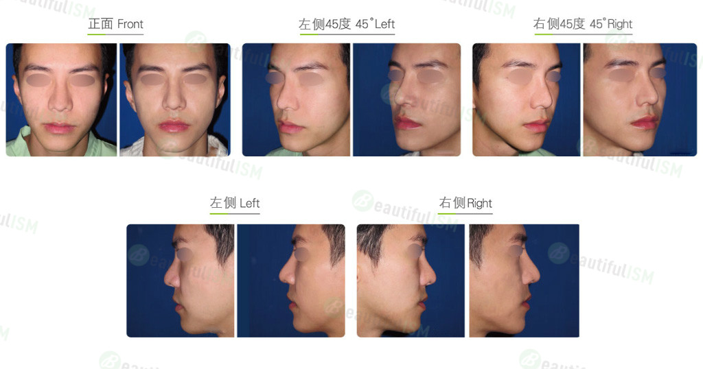韩式隆鼻修复+鼻骨缩减(男)效果图,案例前后对比照片