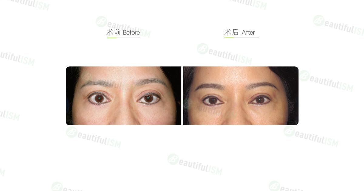 提眼肌整形+双眼皮修复手术效果图,案例前后对比照片