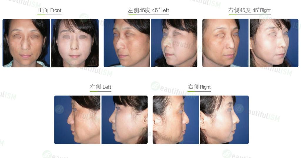 韩式鼻雕+鼻骨缩减(女)案例效果图,手术前后对比照片