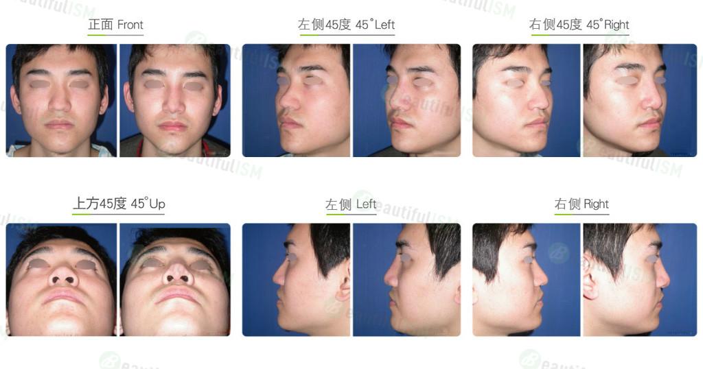 鼻骨缩减+韩式隆鼻(男)效果图,案例前后对比照片