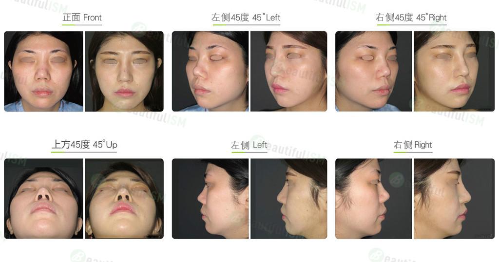 朝天鼻整形+韩式隆鼻+鼻骨缩减(女)效果图,案例前后对比照片