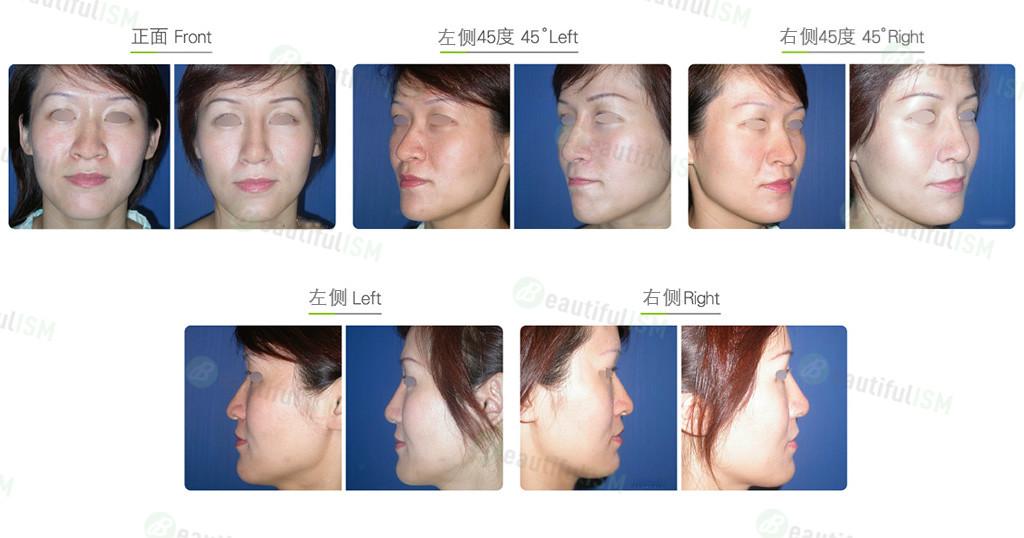 鹰钩鼻整形+韩式隆鼻(女)效果图,案例前后对比照片