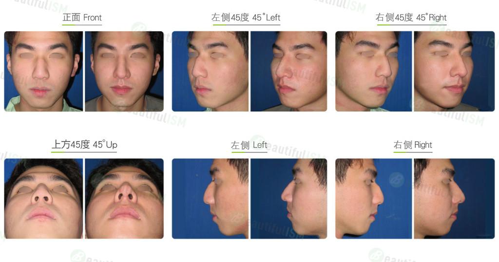驼峰鼻整形+鼻骨缩减(男)效果图,案例前后对比照片