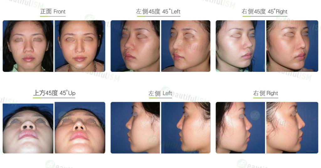 鼻中柱延长+韩式隆鼻(女)效果图,案例前后对比照片