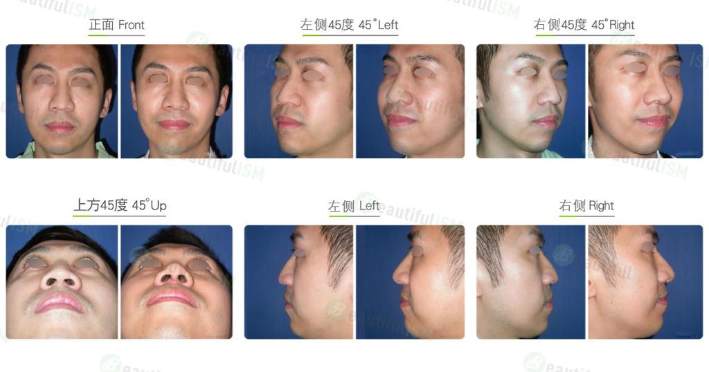 鼻中柱延长+韩式隆鼻(男)效果图,案例前后对比照片