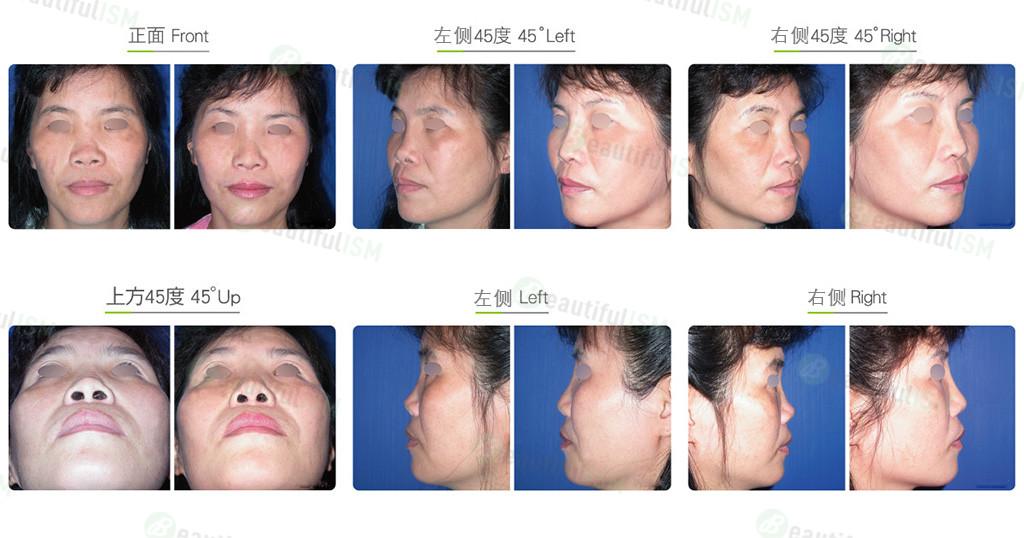 异体肋软骨隆鼻(女)效果图,案例前后对比照片
