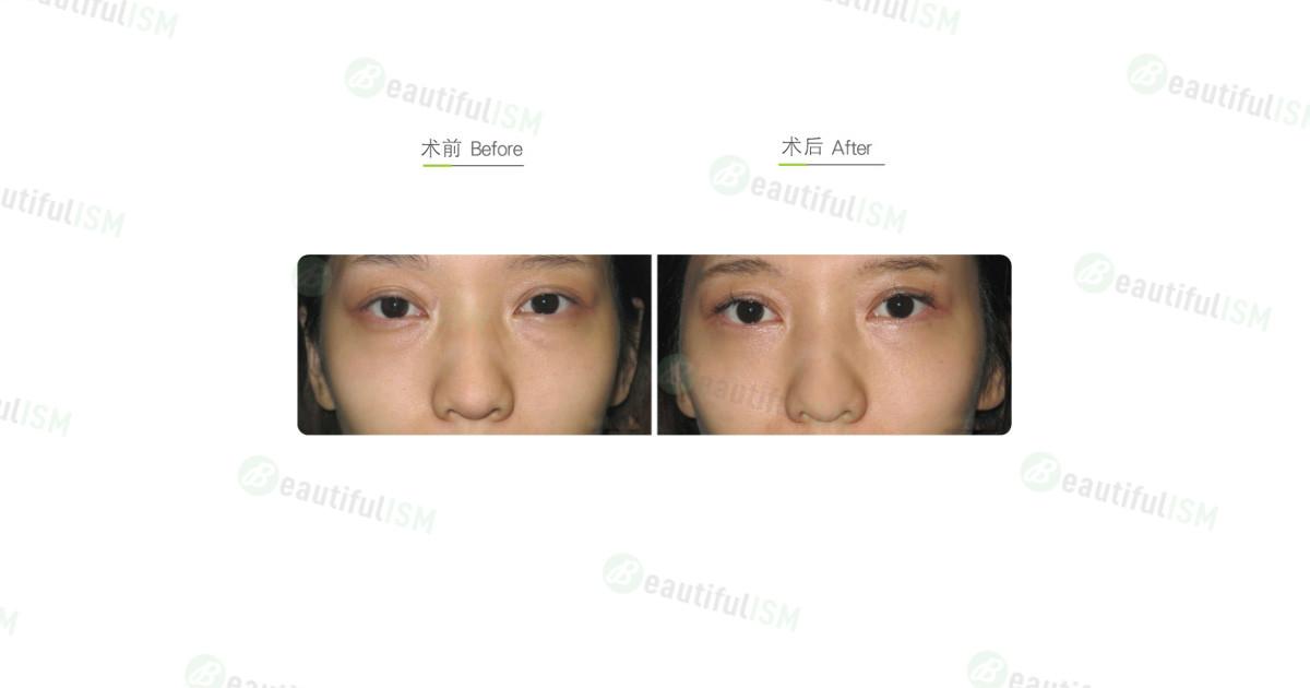 内切抽眼袋(女)效果图,案例前后对比照片
