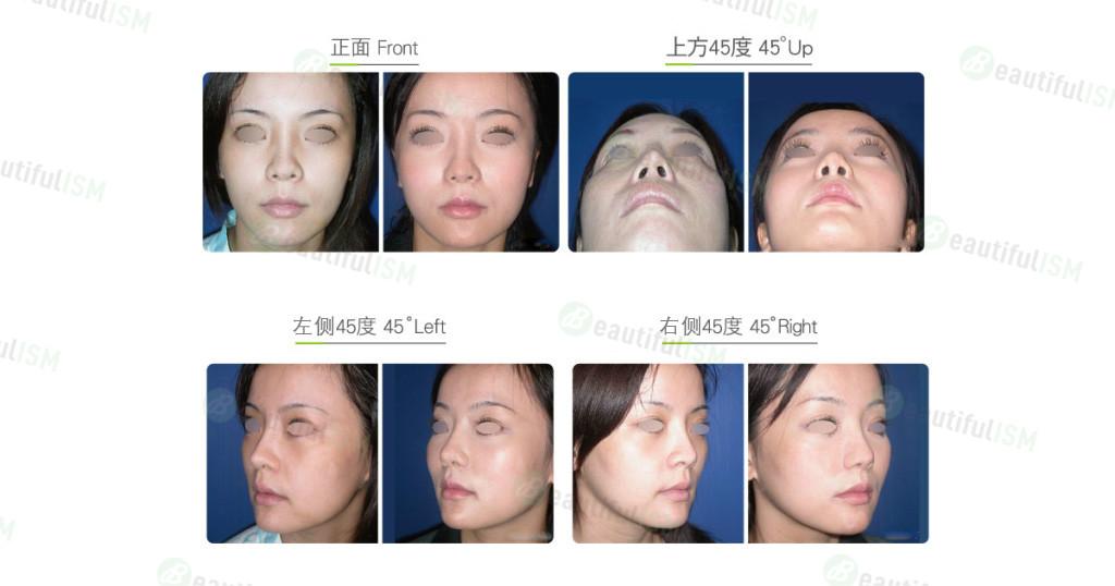 鼻翼缩小(女)效果图,案例前后对比照片