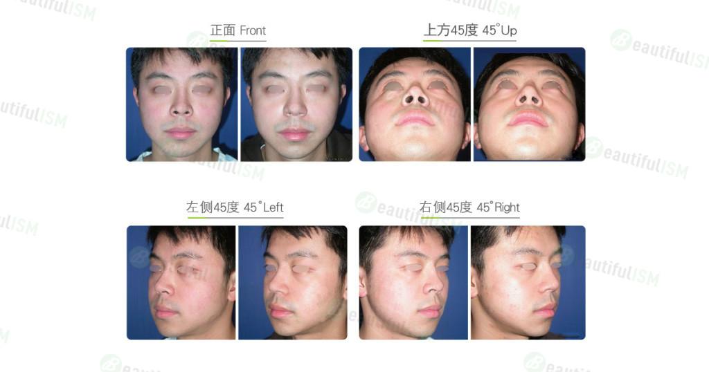鼻孔外露整形(男)效果图,案例前后对比照片