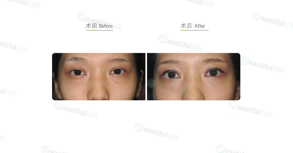 外切法祛眼袋(女)效果图,案例前后对比照片