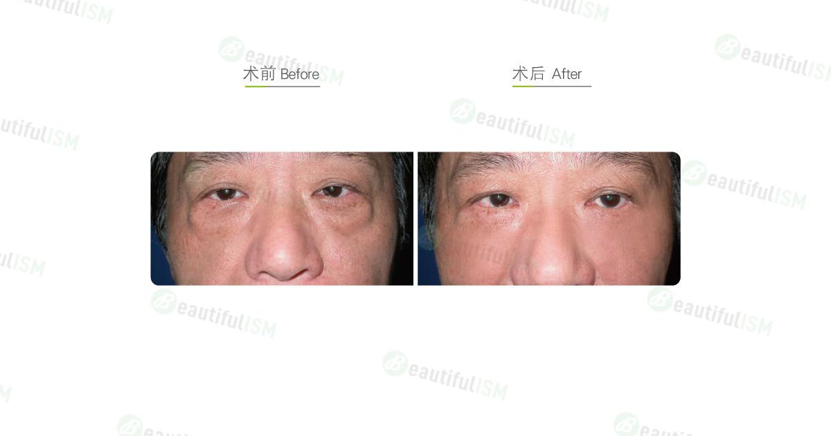 外切法祛眼袋(男)效果图,案例前后对比照片