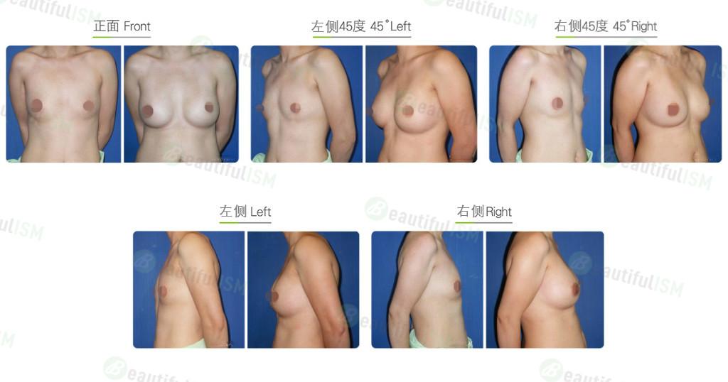 筋膜下漏斗胸整形效果图,案例前后对比照片
