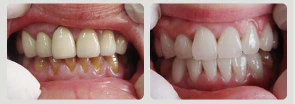 美容冠-全瓷牙效果图,案例前后对比照片