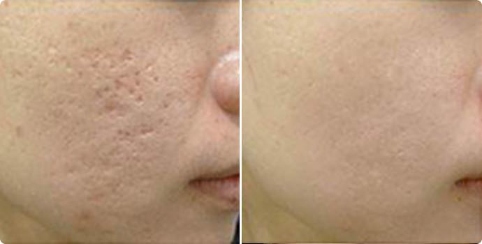 收缩毛孔-射频微针效果图,案例前后对比照片