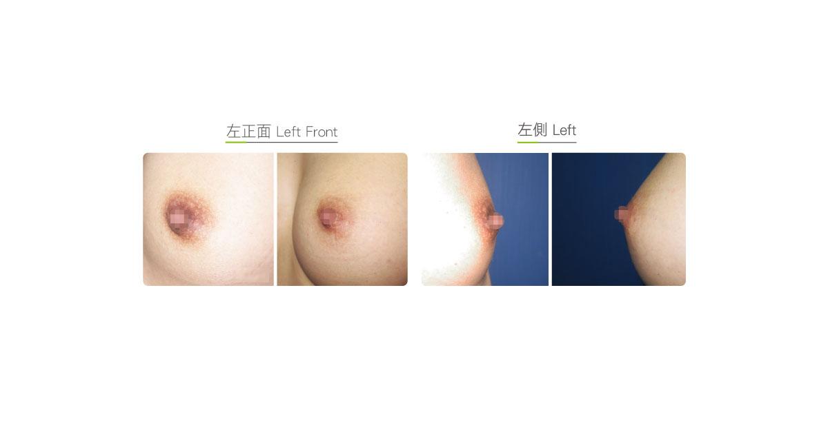 乳头缩小效果图,案例前后对比照片