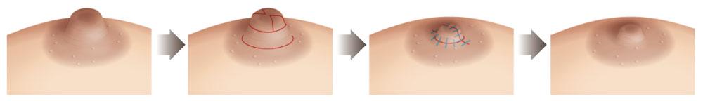 乳头缩小合并缩短矫正